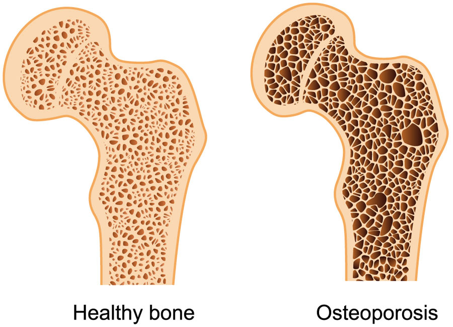 Common_Injuries-Osteoporosis_900
